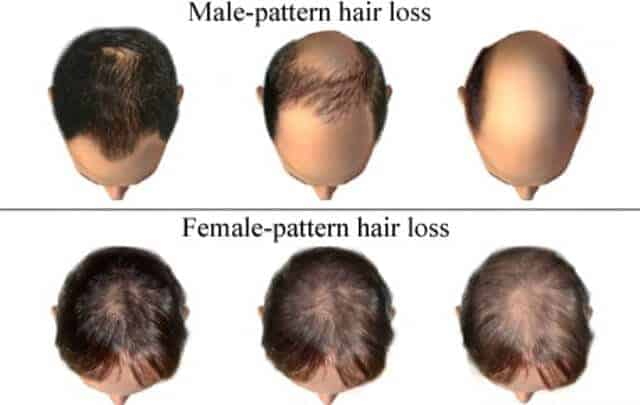 Hair Thinning Pattern