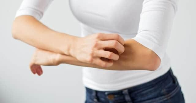 Treating Psoriasis and Eczema