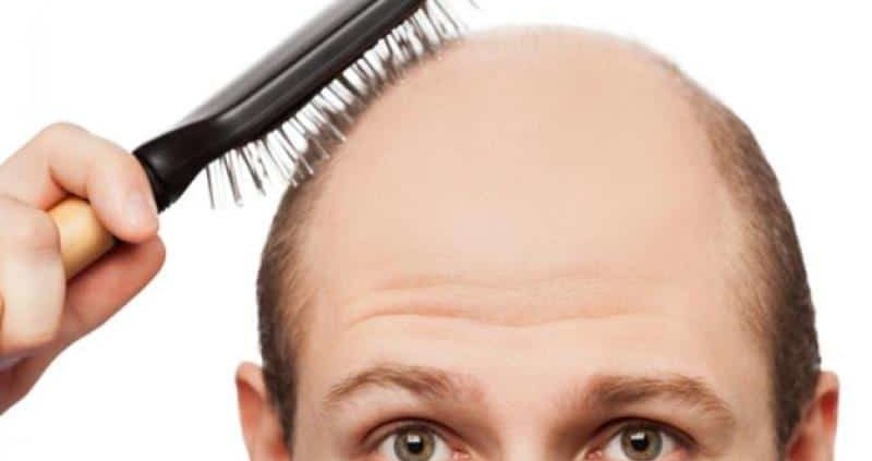 How To Stop Receding Hairline And Regrow Hair Naturally?
