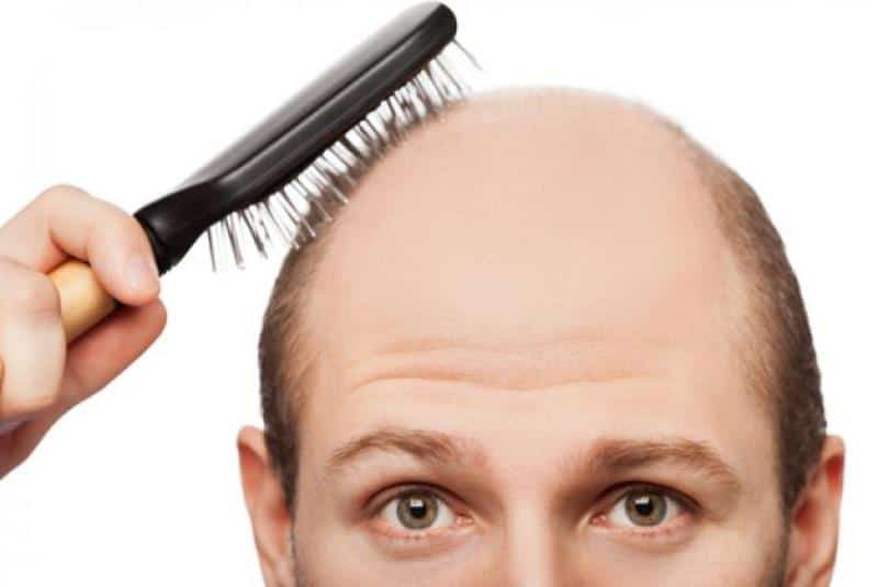 How To Stop Receding Hairline And Regrow Hair Naturally