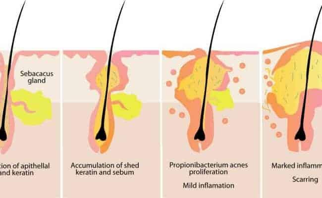 symptoms of testosterone