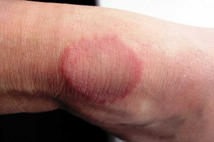 Granuloama Annulare Diagnosis & Home Remedies