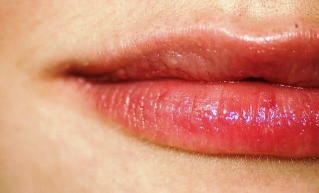 Angular cheilitis: Causes, symptoms, treatment and more