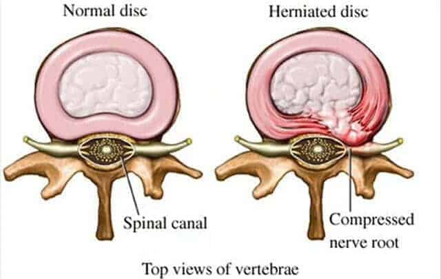 Cause Of Herniated Disc