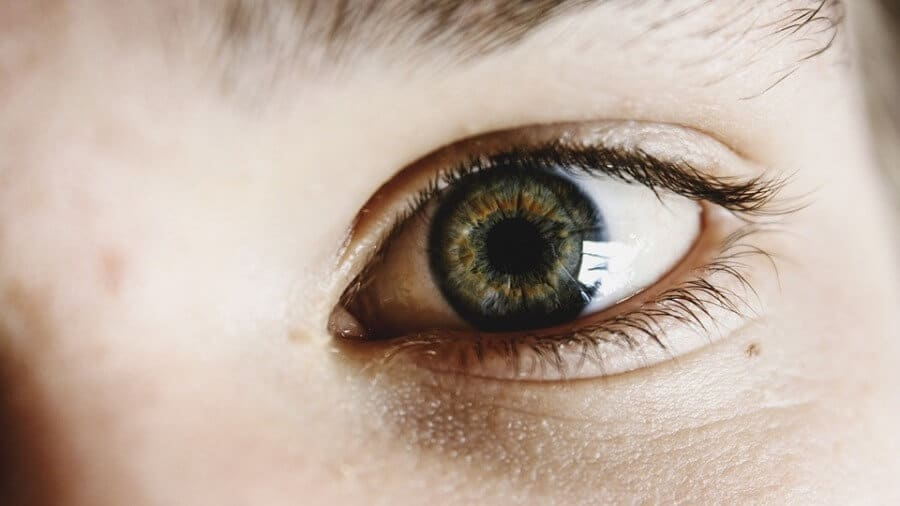 How To Get Rid Of Chalazion Naturally