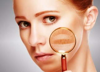 How To Get Rid Of Hyper Pigmentation