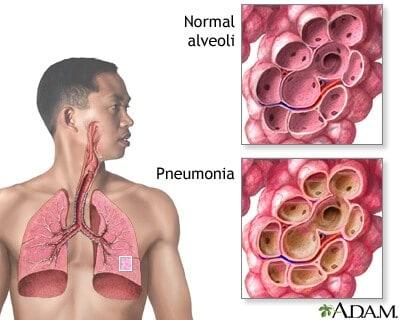 How To Treat Pneumonia Naturally
