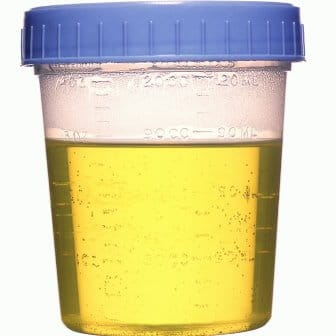What Are The Symptoms Of Pus In Urine