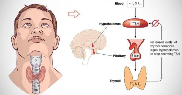 What is Hashimoto Thyroiditis