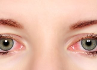 40 Best Natural Remedies For Bloodshot Eye