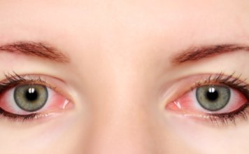 40 Best Natural Remedies For Bloodshot Eye