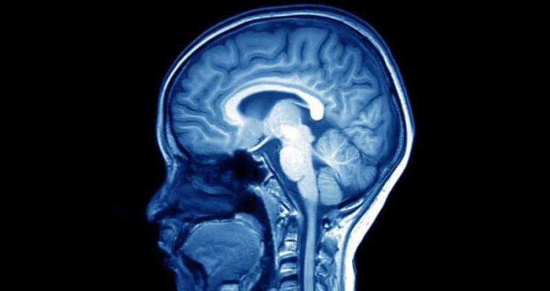 Encephalomalacia : Symptoms, Causes, Diagnosis & Treatment
