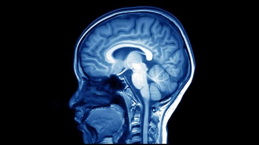 Encephalomalacia Symptoms, Causes, Diagnosis & Treatment