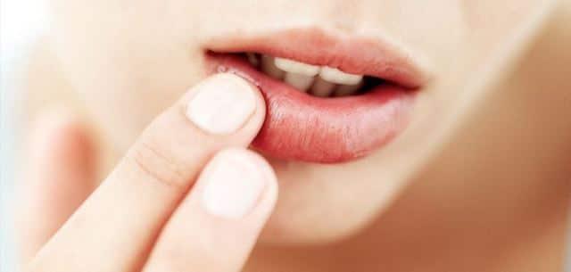 What Are Sunburn Lip Blisters