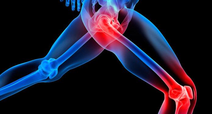 Enthesopathy Causes,Symptoms,Treatment,Home Remedies