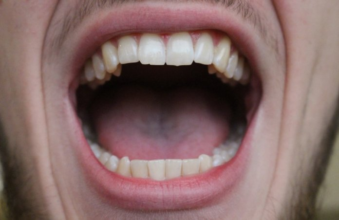 Bump Or Lump On The Roof Of Mouth Causes,Treatment,Home Remedies