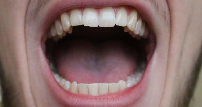 Bump Or Lump On The Roof Of Mouth: Causes,Treatment,Home Remedies