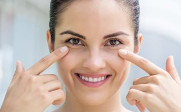 White Bumps (Milia) Under The Eyes- Meaning, Causes, Treatment