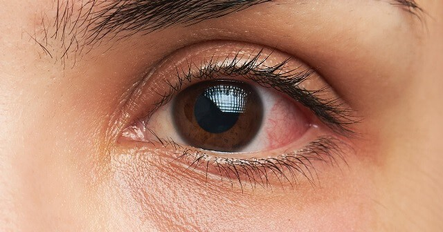 Causes Of Chemosis– Why Does It Happen