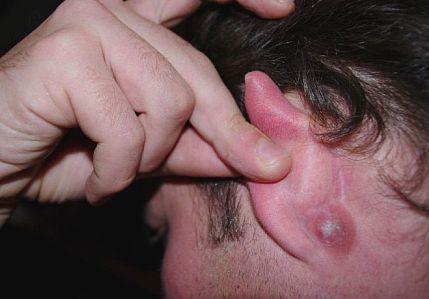 Cyst Behind Ear : Causes, Symptoms, Home Remedies