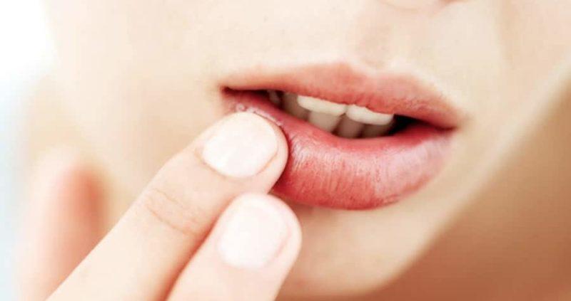 Herpes Gladiatorum : Causes,Symptoms,Treatment