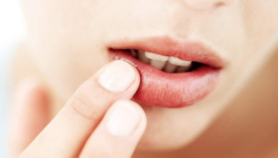Herpes Gladiatorum Causes,Symptoms,Treatment