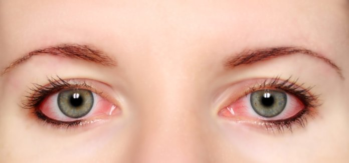 How To Get Rid Of Red Eyes Without Eye Drops