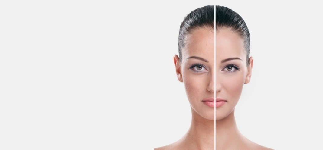 How To Make Face Smooth Using Home Remedies