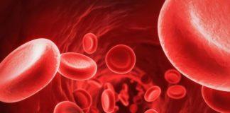 Poikilocytosis Causes,Symptoms,Diagnosis &Treatment