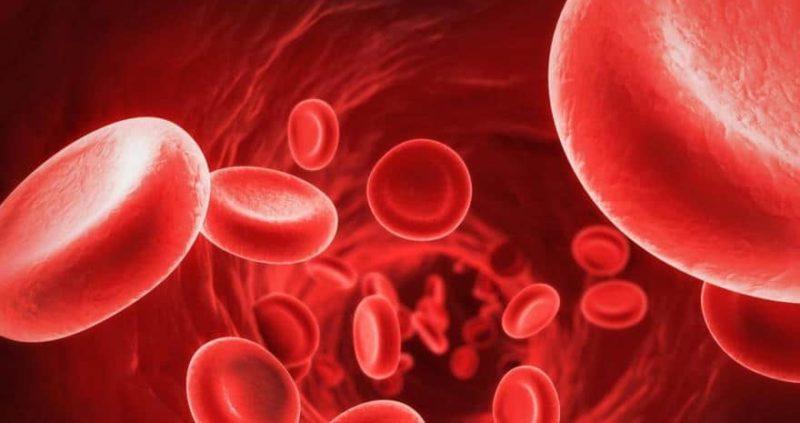 Poikilocytosis : Causes, Symptoms, Diagnosis & Treatment