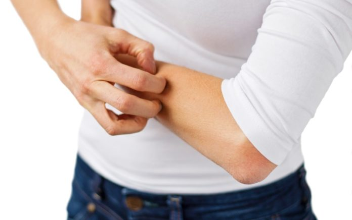 Shingles Without Rash Symptoms,Causes,Home Remedies &Prevention