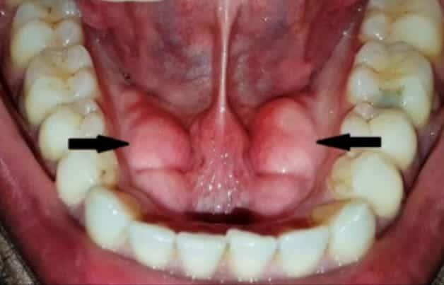 Symptoms OfTorus Mandibularis
