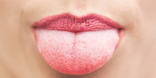 Common Causes For Red Spots On Tongue