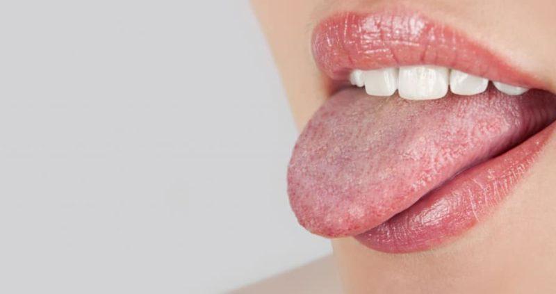 How To Get Rid Of Swollen Taste Buds