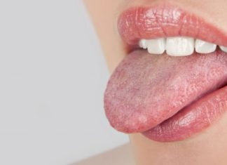 Red Spots On Tongue Causes ,Symptoms & Home Remedies