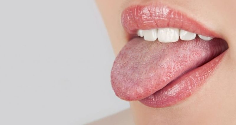 Red Spots On Tongue : Causes ,Symptoms & Home Remedies
