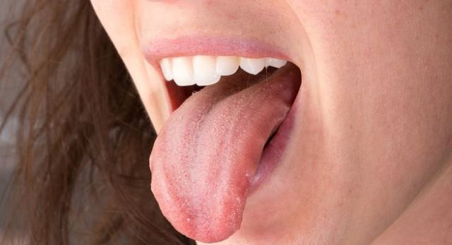 Symptoms Of Red Spots On Tongue