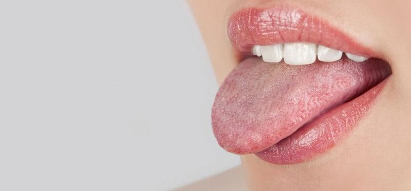 Scalloped Tongue – Causes, Diagnosis &Treatments
