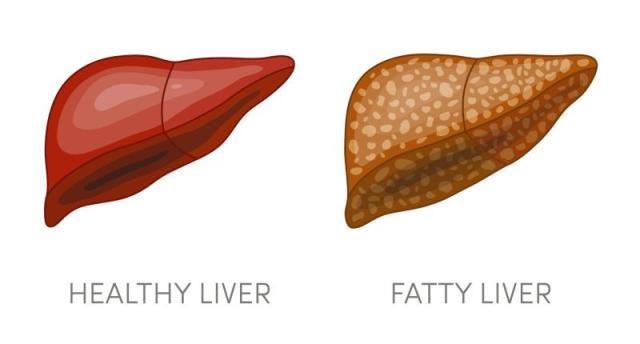 Symptoms of fatty liver