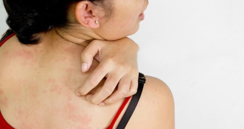 8 Proven Home Remedies For Papular Urticaria That Works