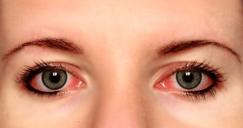 How To Get Rid Of Stoner's Eye?