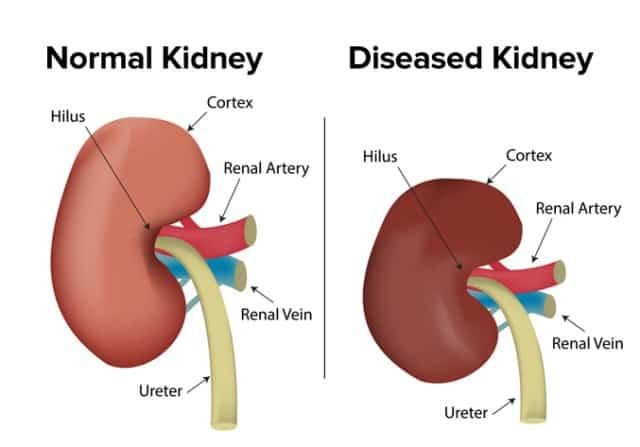 Working of kidneys