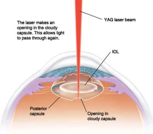 Laser therapy for eyes