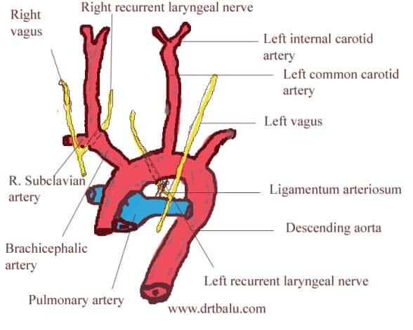Ligamentum-Arteriosum