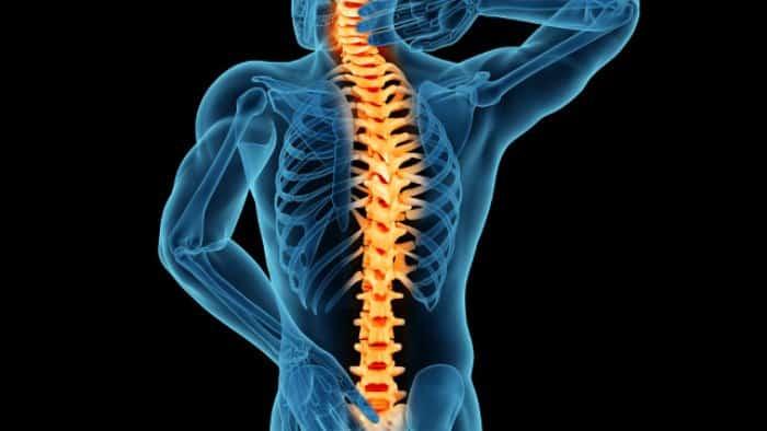Lumbosacral Neuritis -irritation in spinal nerves
