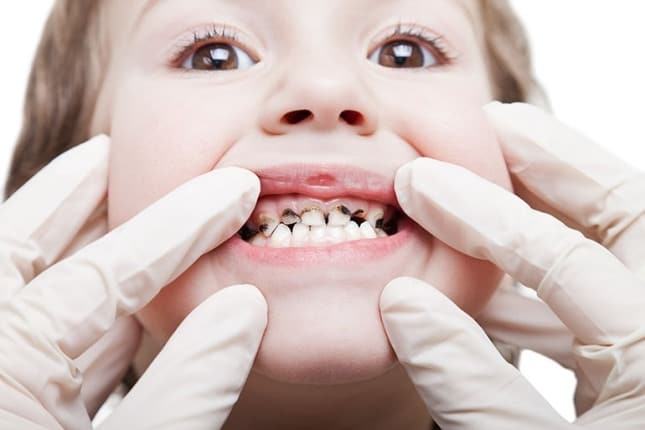 Tooth decay and tooth cavities