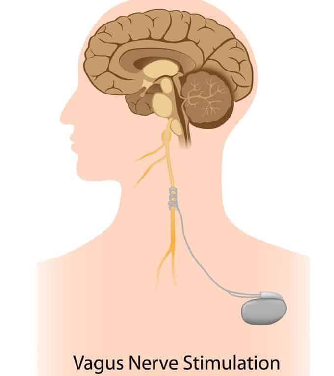 Vagus nerve simulation