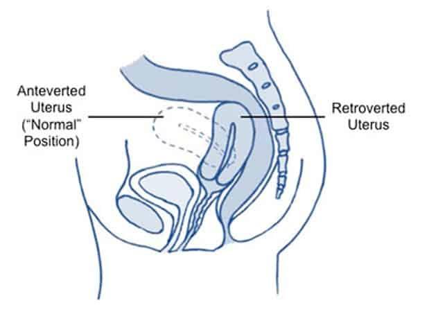 What Is Anteverted Uterus