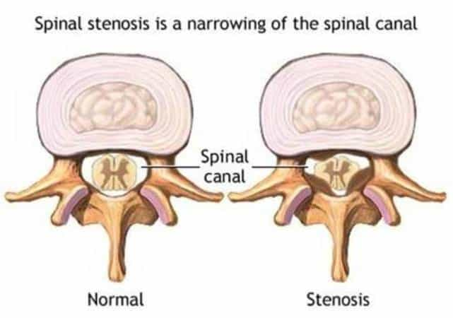 What Is Neural Foraminal Stenosis