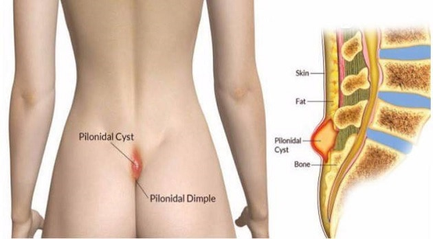 What is Pilondial Cyst